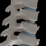 Artificial intervertebral disc prosthesis is installed between the cervical vertebrae